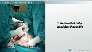 What is a C-Section? - Procedure, Types & Delivery - Video ...