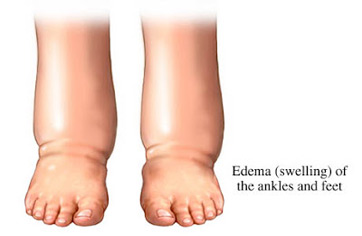 What causes pitting edema in legs and feet edema