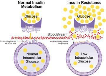 symptoms diabetic ketoacidosis
