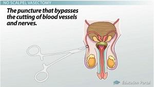 Vasectomy: Purpose, Advantages & Disadvantages - Video ... No Scalpel Vasectomy