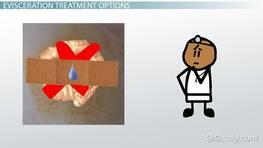Segmentation digestion definition
